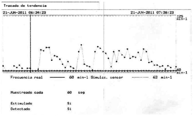 Figura 2. Registro de Tendencia del sensor