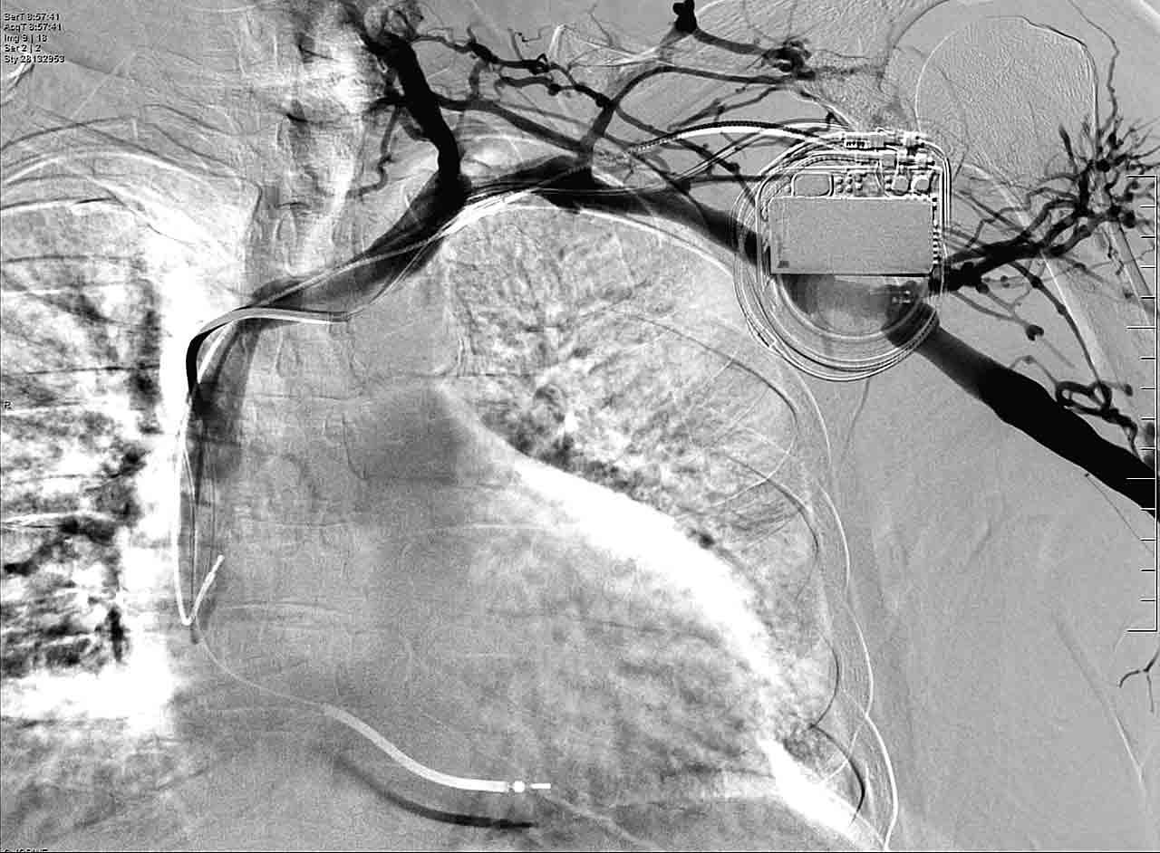 Figura 2. Estenosis preoclusiva de la vena subclavia izquierda a la altura de la confluencia con el tronco innominado.