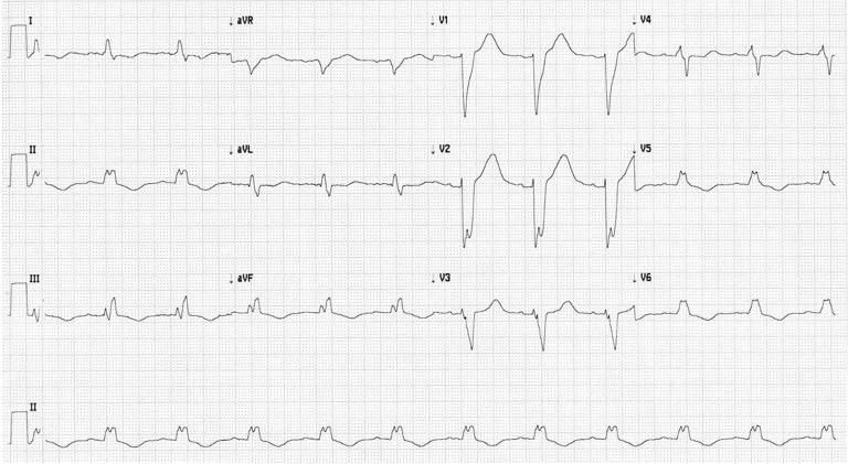 Figura 1a. Trastorno de conducción intraventricular avanzado con un QRS de 180 ms.