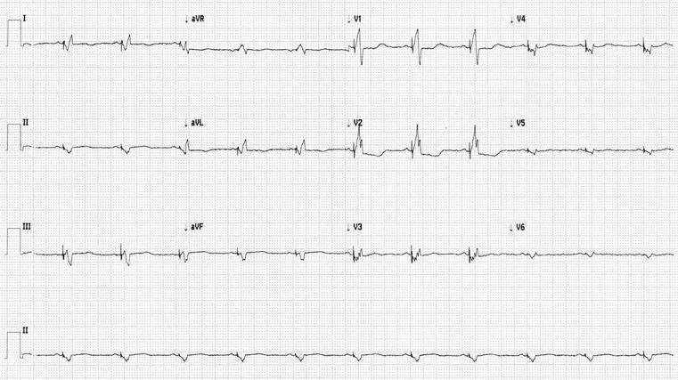 Figura 1b. La estimulación biventricular desde el implante, consiguió una respuesta clínica favorable a la terapia de resincronización cardiaca.
