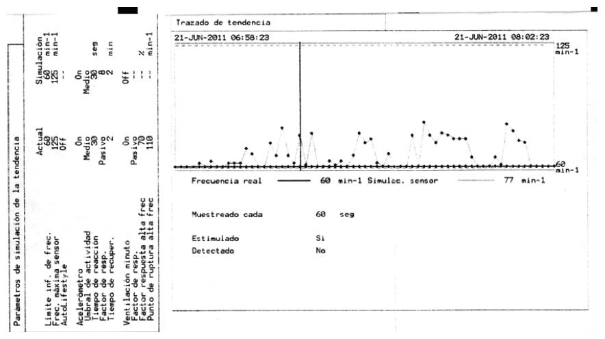 Figura 3. Registro de tendencia y simulación del sensor acelerómetro