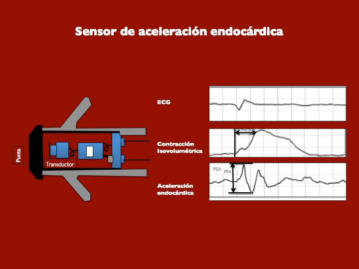 Figura 16. Sensor de aceleración endocárdica