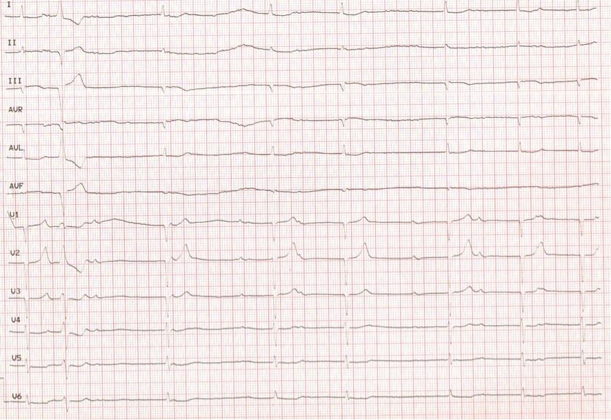 Electrocardiograma en el que se observa un BAV completo con frecuencia ventricular de 40 lpm. Bloqueo incompleto de rama izquierda. Duranción del QRS de 100 ms.
