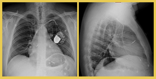 Figura 2. Placa de tórax PA y L en la que se observa electrodo de VI en posición lateral izquierda media.