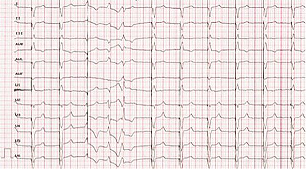 ECG tras el implante de MP con TRC. Patrón de estimulación desde ventrículo izquierdo con R en V1 y eje derecho.