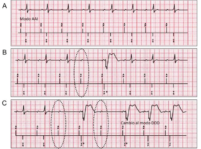 """Ejemplo de paciente con el algoritmo Managed Ventricular Pacing (Medtronic, Minneapolis, MN, EEUU) A: Modo primario AAI(R). B: Bloqueo aurículoventricular (BAV) (indicado con círculos discontinuos) es definido como la ausencia de un evento ventricular sensado entre dos eventos auriculares. La estimulación ventricular """"backup"""" (marcado con un *) se produce a los 80ms de producirse el BAV. C: BAV en 2 de 4 intervalos A-A consecutivos, produce cambio al modo DDD(R)."""
