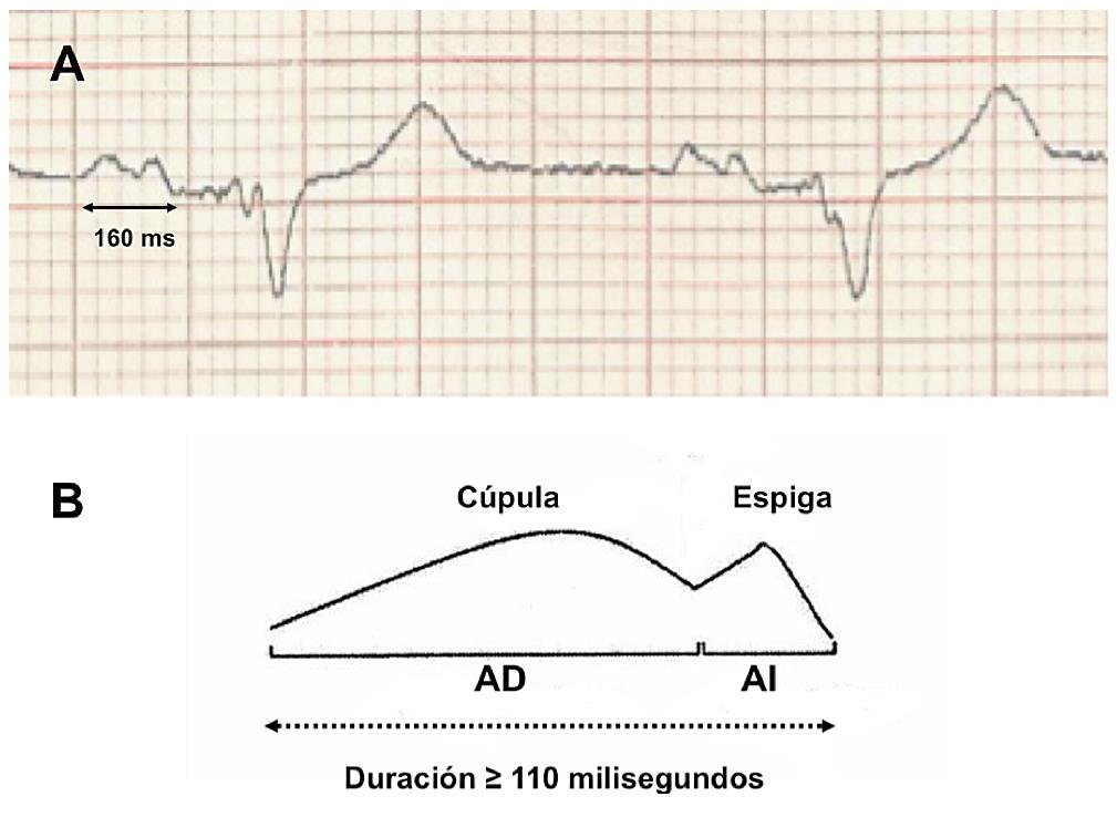 "Panel A: Onda P bimodal, con morfología tipo "" dome and spike"" y duración de 160 milisegundos. Panel B: Esquema de esta morfología de onda P. Abreviaturas: AD = Aurícula derecha. AI = Aurícula izquierda."