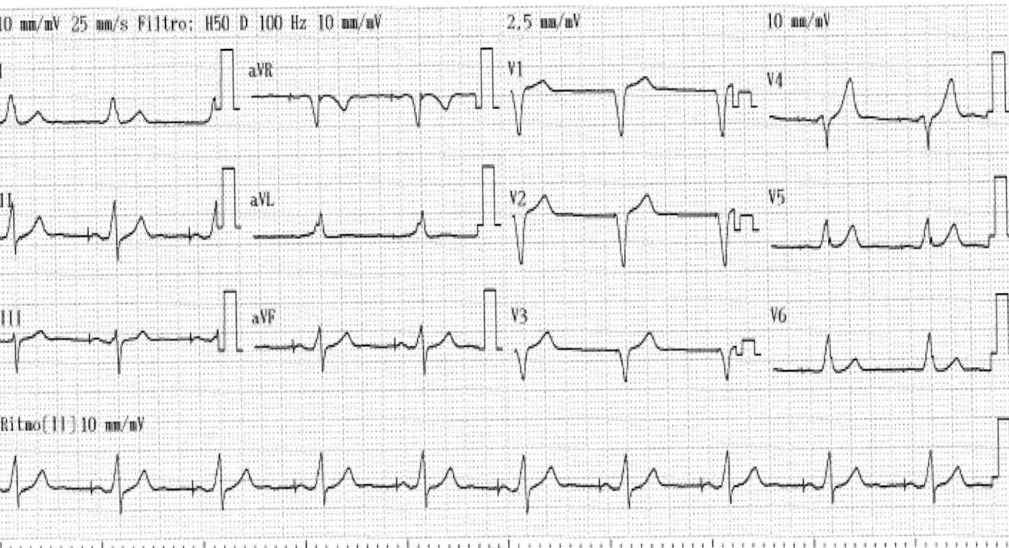 FIGURA 4: ECG de 12 derivaciones post-implante.