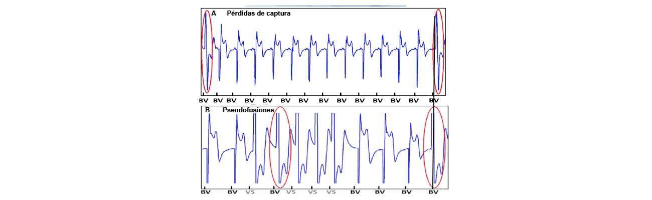 Se muestra el electrograma punta VI—bobina VD y el canal de marcas durante dos registros que presentan latidos con estimulación ventricular izquierda inefectiva; en el panel A debido a pérdida de captura intermitente y en B a pseudofusiones durante fibrilación auricular. Los latidos con captura ventricular efectiva muestran q incial y los latidos con estimulación