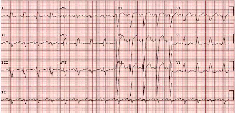 Figura 1. ECG de 12 derivaciones basal (antes de implante de DAI-TRC) que muestra ritmo sinusal y bloqueo completo de rama izquierda con QRS de 160 ms.
