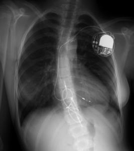 Implante-Figura3