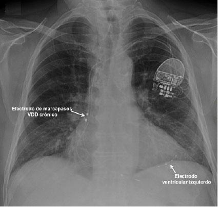 Radiografía de tórax de control a las 24 horas del implante, con la posición del electrodo previo de marcapasos VDD y del electrodo ventricular izquierdo.