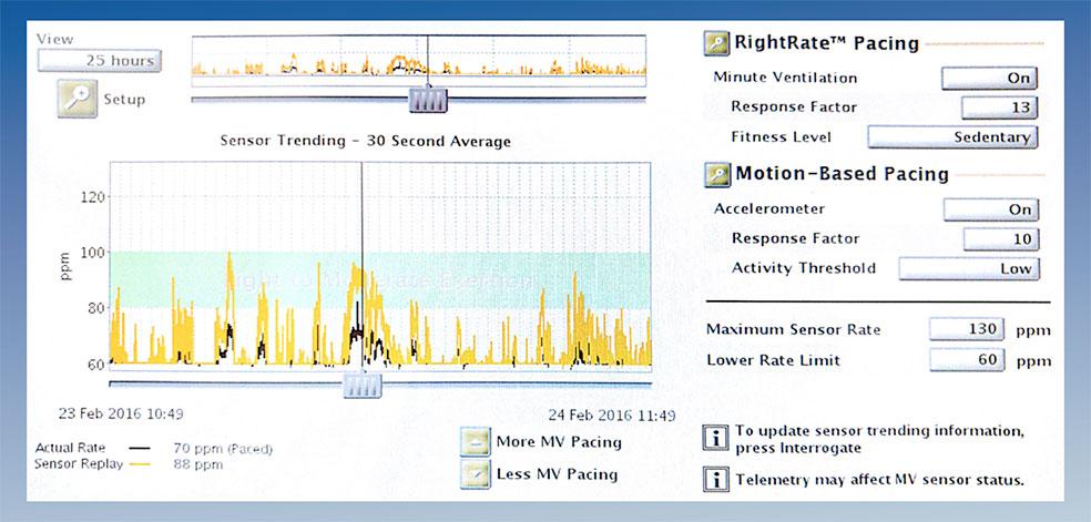 Figura. 2: Se muestra la simulación que proporciona durante la programación, acorde a los datos almacenados