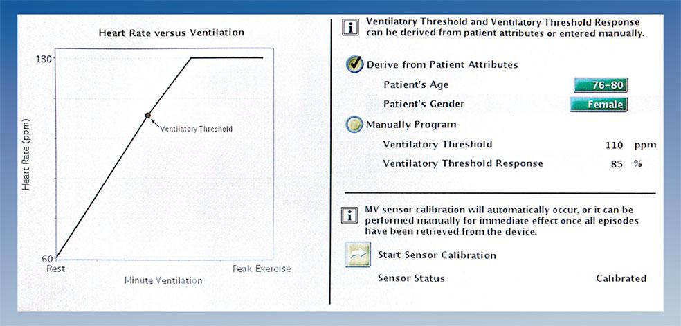 Figura 1: En este modelo, según edad y sexo, se nos sugieren por el marcapasos distintos perfiles de respuesta