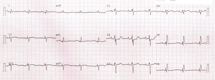 Figura 4.- ECG obtenido tras la optimización AV con algoritmo SmartDelay (Boston Scientific), que muestra signos de fusión. Se aprecia que el inicio del QRS es similar al del ritmo espontáneo (Figura 1). Sin embargo, la estimulación produce un estrechamiento apreciable del QRS al adelantar la activación de las fuerzas terminales.