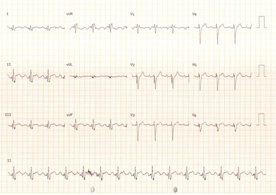 Figura 1: ECG basal. Se aprecia imagen de bloqueo de rama derecha, con un eje indeterminado y fragmentación al inicio del QRS.