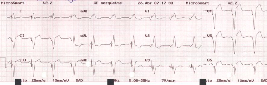 Figura 3: ECG obtenido tras la optimización por ecocardiograma (Ritter), con intervalo AV detectado de 120 ms y VV de 0 ms. Se aprecia como la onda P es truncada por el artefacto de estimulación ventricular y el QRS es más ancho que el basal de la paciente.