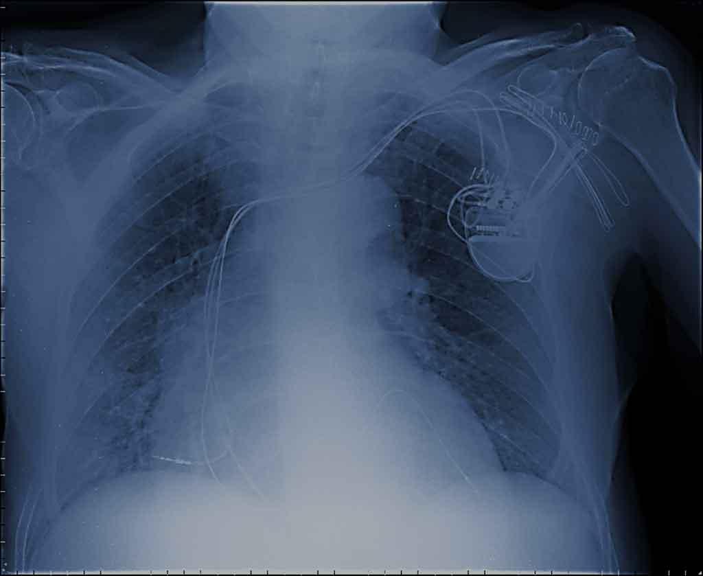 Figura 4. Rx de tórax a las 24 hs del implante con la posición final del electrodo ventricular izquierdo.